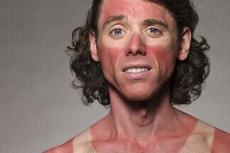 Ожоги, пигментация, аллергия. Разбираемся, как защитить кожу от опасного солнца