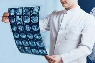 У головного мозга появился новый враг — коронавирус. Разбираемся во всех тонкостях МРТ