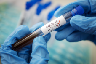 В Казахстане снизили стоимость ПЦР-тестирования на COVID-19