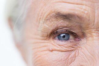 Можно ли вылечить катаракту и обязательна ли операция?