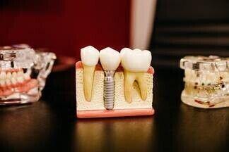 Генетики нашли способ стимулировать рост новых зубов